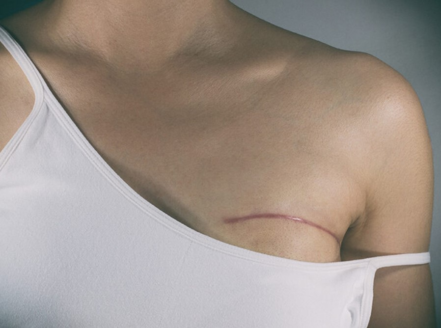 Understanding Breast Cancer Treatment Options
